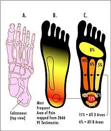 PF Pain Areas