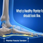 Can plantar fasciitis be cured