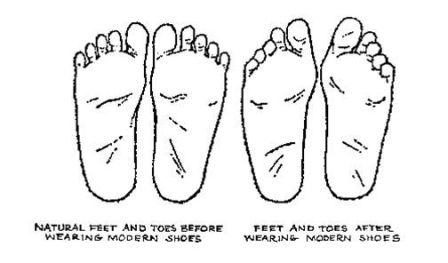 What is Plantar Fasciosis