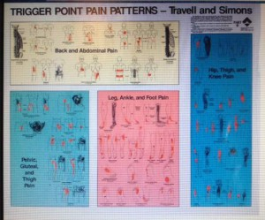 Trigger point referral pain chart